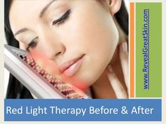 Red Light Therapy On Pinterest French Skincare Tanning