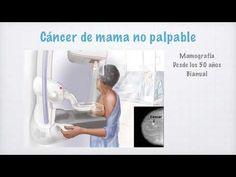 En este video revisamos los aspectos anatómicos, clínicos, diagnósticos y el tratamiento del cáncer de mama, decidí no incluir la clasificación TNM