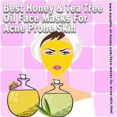 Best recipes Honey - 7 Best Honey And Tea Tree Oil Face Masks For Acne Skin. - Best recipes Honey – 7 Best Honey And Tea Tree Oil Face Masks For Acne Skin… - Acne Face Mask, Best Face Mask, Acne Skin, Acne Prone Skin, Face Masks, Natural Remedies For Sunburn, Skin Care Remedies, Tea Tree Oil For Acne, Best Honey