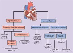 Right versus Left sided heart failure