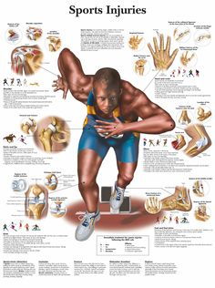 Sports Medicine and Orthopedics, Sports Physical Therapy and Common Injuries. Sports Physical Therapy, Sports Therapy, Physical Therapist, Therapist Office, Medical Posters, Athletic Trainer, Sports Massage, Massage Techniques, Tennis Elbow