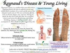 Raynauds syndrome - YOUNG LIVING ESSENTIAL OILS -- Distributor #1541222 -- www.youngliving.org