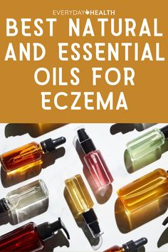 Want to go natural? With your dermatologist's okay, these nourishing oils may be an appropriate addition to your eczema treatment regimen.