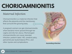 Chorioamnionitis is infection of the placenta and amniotic sac. If mismanaged, it can cause issues like villitis and hypoxic-ischemic encephalopathy (HIE). Newborn Nursing, Ob Nursing, Maternity Nursing, Newborn Care, Neonatal Nursing, High Risk Pregnancy, Pregnancy Health, Basic Anatomy And Physiology, Nursing School Notes