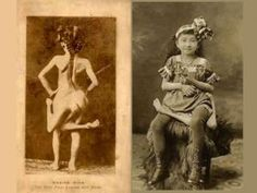 Maxine-mina, born in the Phillippines in 1896, born with a parasitic twin