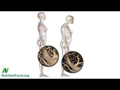 """""""Alkaline Diets, Animal Protein, & Calcium Loss"""" - By Dr. Michael Greger -  """"The decades-old dogma that the acid-forming quality of animal protein leads to bone loss has been called into question."""""""