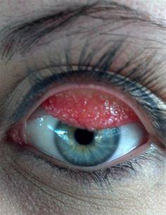 Acute Angle Closure Glaucoma Natural Treatment