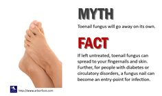 Fact or fiction as related to nail fungus What Causes Toenail Fungus, Toenail Fungus Home Remedies, Infected Toe, Toe Fungus Treatment, What Is Fungi, Thick Toenails, Cracked Nails