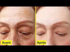 Korean Skin Repair Secrets To Look 10 Years Younger Than Your Age, Skin Care Routine & Home Remedies – annette amato – beauty skin care Oily Skin Care, Healthy Skin Care, Apple Cider Vinegar Facial, Back Acne Treatment, Korean Skincare Routine, Wrinkle Remover, Skin Care Remedies, Homemade Skin Care, Tips Belleza