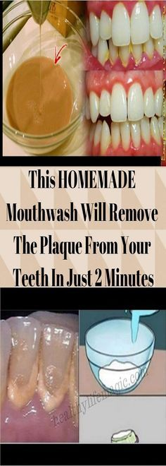 This HOMEMADE Mouthwash Will Remove The Plaque From Your Teeth In Just 2 Minutes | Healthy Life Magic