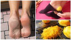 La cáscara de limón es un gran aliado para combatir las durezas y molestias en los pies. Descubre cómo puedes aprovecharla.