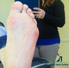 So what is a callus? Why does it form? What can you do to prevent callus pain?
