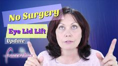 #NoSurgery Eye Lid Lift Update - EAWM Series 1 | FACEROBICS #faceexercises