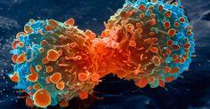 Comment faire mourir le cancer de faim en supprimant ce seul ingrédient