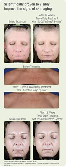 For younger-looking skin look no further. Here at Schwartz Laser Eye Center we are offering REVALÉSKIN care line!