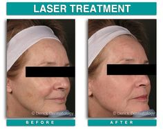 Laser Resurfacing of the Full Face Co2 Laser Resurfacing, Fractional Laser, Laser Surgery, Medical Spa, Beauty Spa, Skin Tightening, Full Face, Cosmetics