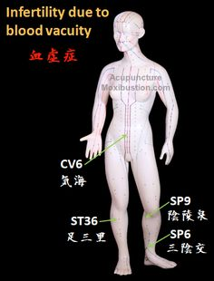 Acupuncture Treatment Fertility Enhancing Points used in Traditional Chinese Medicine: phlegm dampness blockage Acupuncture Fertility, Acupuncture For Anxiety, Acupuncture Benefits, Acupuncture Points, Acupressure Points, Fertility Foods, Massage Shiatsu, Reflexology Massage, Qi Gong
