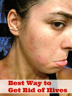 Stress Hives | Causes, Symptoms and Treatments of a Stress ...
