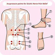 Sciatica TENS placement for treatment