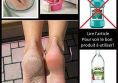 MISE EN GARDE! Si vous avez des blessures sur les pieds, il est préférable de consulter avant d'utiliser cette méthode. IMPORTANT! Utilisez le Listerine original de couleur doré, le bleu tache la peau desséchée. On veut des plus beaux pieds, pas des