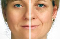 Creme Anti Rides, Creme Anti Age, Anti Aging Cream, Pele Natural, Natural Skin, Natural Oils, Natural Face Lift, Natural Healing, Natural Beauty