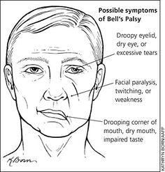 bells palsy recovery (7th cranial nerve problem) | nervous system, Cephalic Vein