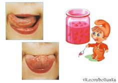 Wall | VK Speech Language Therapy, Speech And Language, Oral Motor, Community, Wall, Board, Kids, Language Activities, Speech Therapy
