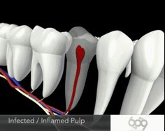 Root canal animation