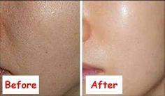 glowing skin before and after