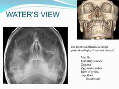 Maxilla anatomy, development & surgical anatomy Palatine Bone, Paranasal Sinuses, Maxillary Sinus, Facial Bones, Nasal Septum, Cleft Lip, Human Anatomy, Cavities, Trauma