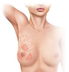Link Between (a stagnant) Lymphatic System and Breast Cancer - and preventative methods of treatment
