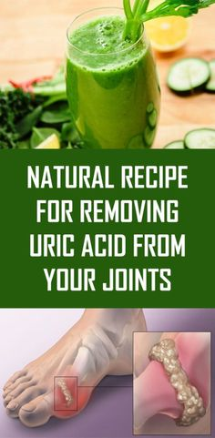 High uric acid levels can cause gout and other diseases. Discover home remedies to naturally eliminate uric acid crystals. The increase in the production of uric acid in the blood can cause diseases such as gout ; whose symptoms are usually quite painful. Natural Home Remedies, Natural Healing, Herbal Remedies, Natural Oil, Holistic Remedies, Cold Remedies, Healing Herbs, Holistic Healing, Natural Cure For Arthritis