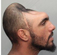 El hombre con media cabeza