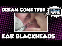 Acne Advice For People Wanting Blemish Free Skin Ear Pimple, Pimples, Acne Rosacea, Acne Skin, Dilated Pores, Deep Blackheads, Pimple Popping, Most Satisfying Video, Types Of Acne