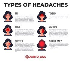 Headaches can be more complicated than most people realize. Each type of headache has its own symptoms, causes, and treatments. Massage can be used to help reduce the symptoms of headaches. Tmj Massage, Massage Tools, Foot Massage, Digital Portrait, Portrait Art, Professional Massage, Human Anatomy And Physiology, Tension Headache, Eye Makeup Art