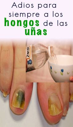 Como eliminar los hongos de las uñas rápidamente - Soy moda Baby Shower, Keto Diet For Beginners, Beauty, Ideas, Medicine, Health Care, Health Remedies, Health Tips, Self Care