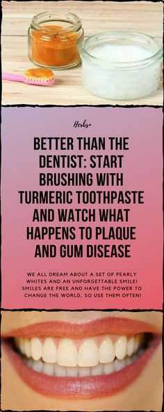 Better Than The Dentist Start Brushing With Turmeric Toothpaste We all dream about a set of pearly whites and an unforgettable smile Smiles are free and have the power to. Natural Remedies For Cavities, Natural Health Remedies, Herbal Remedies, Teeth Whitening Remedies, Natural Teeth Whitening, Teeth Health, Healthy Teeth, Gum Health, Oral Health