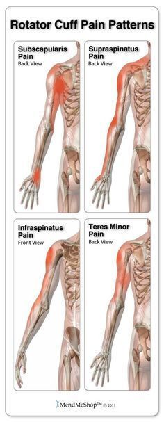 Rotator Cuff Pain Patterns. Thank you for following CCRC Physical Therapy on Pinterest! Follow our boards and like us on Facebook www.facebook.com/... and visit our website www.ccrcnc.com!