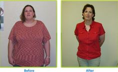 weight loss surgery - http://www.angeleshealth.com/weight-loss-surgery