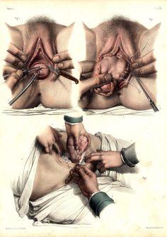 Jean Baptiste Marc Bourgery & Nicolas Henri Jacob - Atlas of Human Anatomy and Surgery.