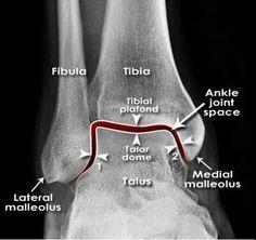Radiology Schools, Radiology Student, Radiology Imaging, Pharmacy Student, Medical Memes, Medical Facts, Body Anatomy, Ankle Anatomy, Medical Anatomy