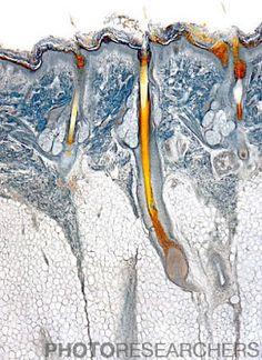 Micrograph of 3 hair follicles on a human scalp.  ©M. I. Walker / Photo Researchers, Inc.