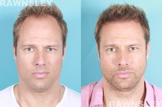 FUE Hair Transplant | Rawnsley Hair Restoration