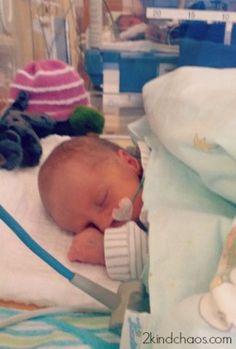 Schwierige Schwangerschaft und Frühgeburt. Ich hätte euch gebraucht! - 2KindChaos Eltern Blogazin  #mamasein #frühgeburt #baby #mamablog #krankenhaus #frühchen