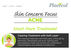 Must have treatment for Acne. Follow our Skin Concern Focus for information on treating and preventing acne. #FreshSkin #FreshSkinAdvice #Acne