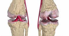 Questo rimedio aiuta ad alleviare i dolori articolari rapidamente ed efficacemente. Il liquido che si [Leggi Tutto...]