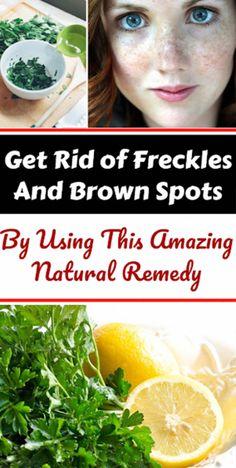 Ways to get Rid Of Brown Spots on Facial area #BestCreamForBrownSpots Brown Skin, Dark Skin, Dark Brown, Getting Rid Of Freckles, Brown Spots On Hands, Dark Spots, Skin Spots, Natural Home Remedies, Natural Healing