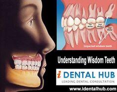 Understanding Wisdom Teeth
