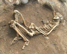 Tuberculosis, considerada por varios autores como la enfermedad adquirida humana más antigua que se conoce. Las primeras evidencias de tuberculosis en humanos se han encontrado en restos óseos del Neolítico, en un cementerio próximo a Heidelberg, supuestamente pertenecientes a un adulto joven, y datados en torno a 5000 años antes de nuestra era.