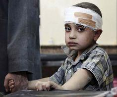 Un #bambino ferito in #Siria. #bambini #guerra